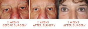 Eyelid surgery (blepharoplasty) Culpeper