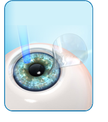 Laser Vision Correction (LASIK)
