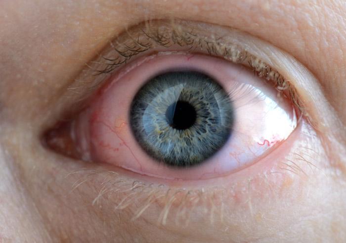 Pink Eye — Yikes!
